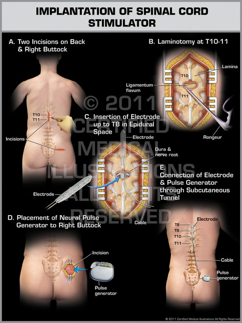Exhibit of Implantation of Spinal Cord Stimulator Male.