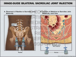 Exhibit of Image-Guide Bilateral Sacroiliac Joint Injection.