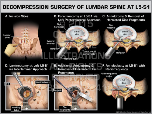 Exhibit of Decompression Surgery of Lumbar Spine at L5-S1.