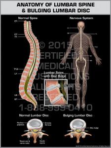 Exhibit of Anatomy of Lumbar Spine & Bulging Lumbar Disc.