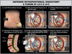 Exhibit of Anterior Retroperitoneal Discectomy & Fusion at L2-3 & L4-5.