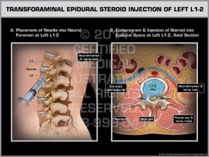 Exhibit of Transforaminal Epidural Steroid Injection of Left L1-2.