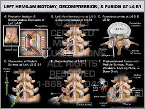 Exhibit of Left Hemilaminotomy, Decompression, & Fusion at L4-S1.