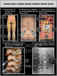 Exhibit of Image-Guide Lumbar Medial Branch Nerve Block Male.