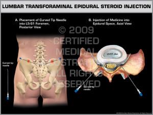 Exhibit of Lumbar Transforaminal Epidural Steroid Injection.