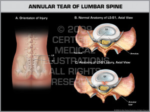 Exhibit of Annular Tear of Lumbar Spine.