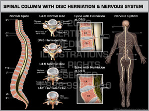 Exhibit of Spinal Column with Disc Herniation & Nervous System.