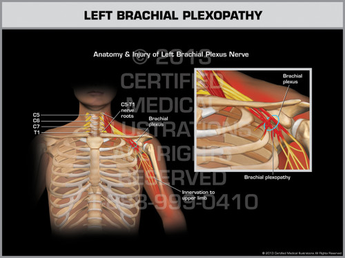 Exhibit of Left Brachial Plexopathy.