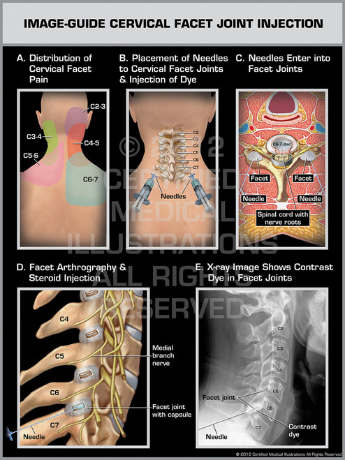 Exhibit of Image-Guide Cervical Facet Joint Injection Male.