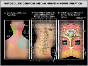 Exhibit of Image-Guide Cervical Medial Branch Nerve Ablation Male