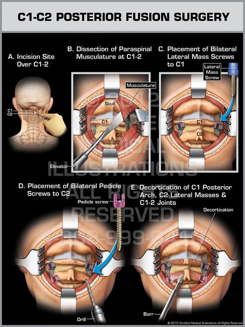 Exhibit of C1-C2 Posterior Fusion Surgery.