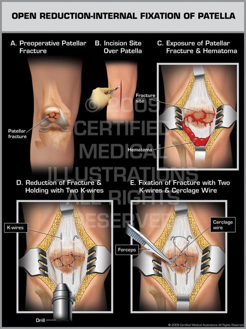 Open Reduction-Internal Fixation of Patella