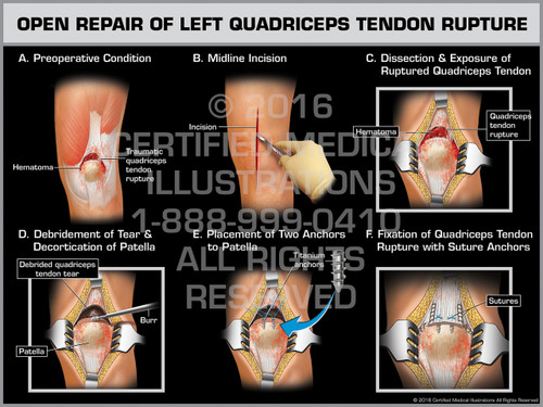 Open Repair of Left Quadriceps Tendon Rupture