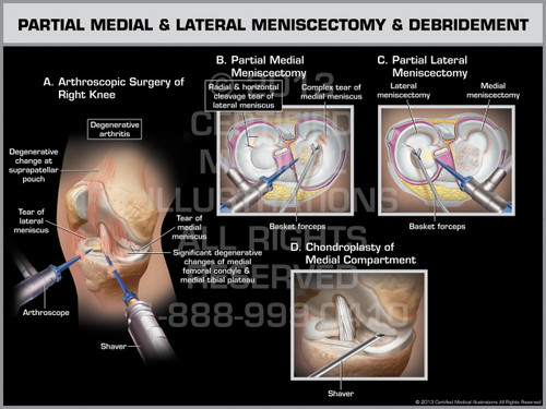 Exhibit of Partial Medial & Lateral Meniscectomy & Debridement.