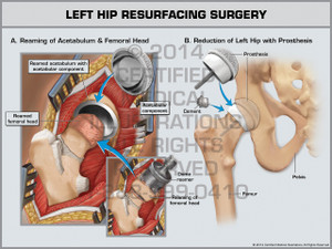 Exhibit of Left Hip Resurfacing Surgery.
