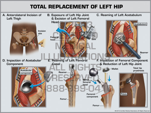 Exhibit of Total Replacement of Left Hip.