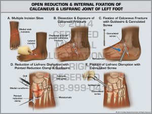 Exhibit of Open Reduction & Internal Fixation of Calcaneus & Lisfranc Joint of Left Foot.