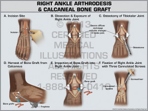 Exhibit of Right Ankle Athrodesis & Calcaneal Bone Graft.