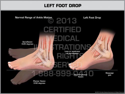 Exhibit of Left Foot Drop.