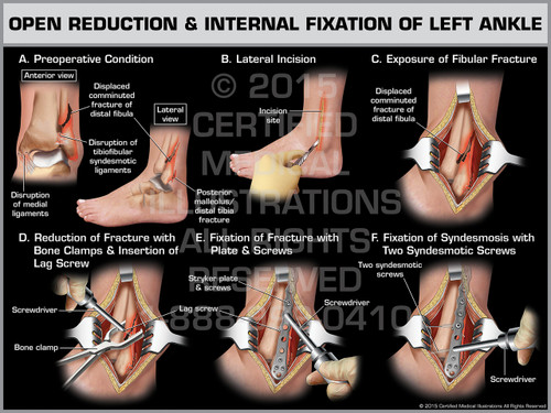 Exhibit of Open Reduction & Internal Fixation of Left Ankle.