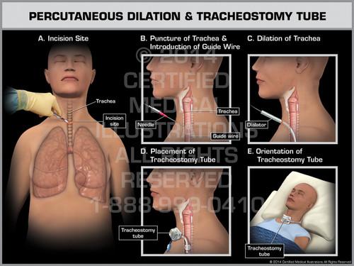 Exhibit of Percutaneous Dilation & Tracheostomy Tube Female.