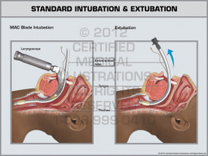 Exhibit of Standard Intubation & Extubation.
