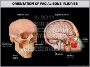 Exhibit of Orientation of Facial Bone Injuries.