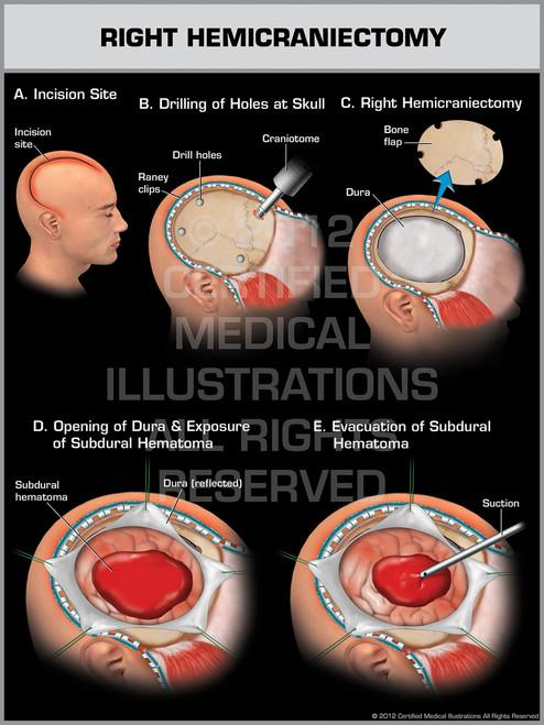 Exhibit of Right Hemicraniectomy.