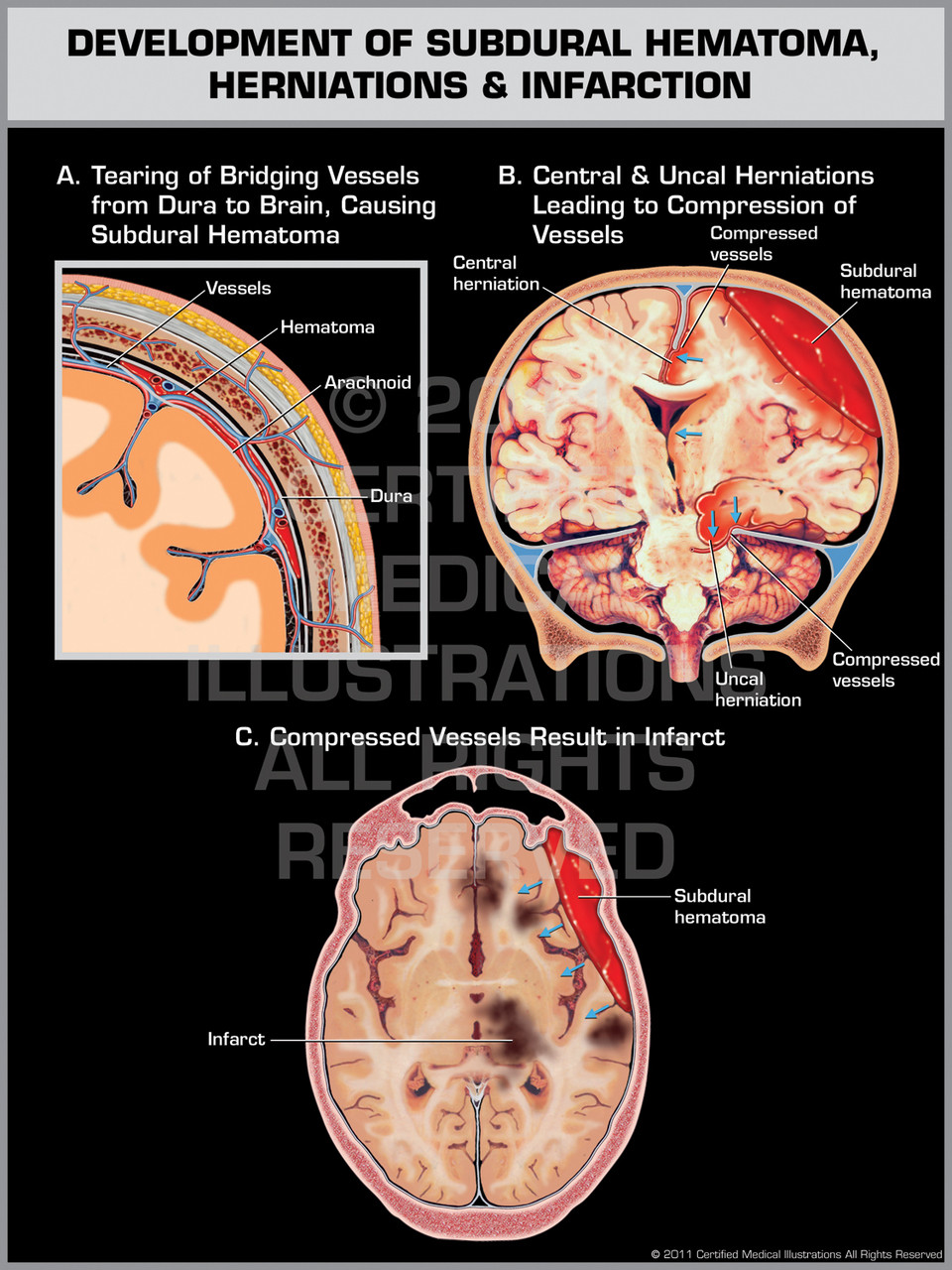 Development of Subdural Hematoma, Herniations & Infarction - Print Quality  Instant Download