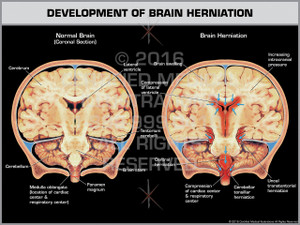 Exhibit of Development of Brain Herniation Coronal Section.
