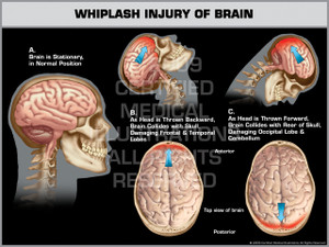 Exhibit of Whiplash Injury of Brain.