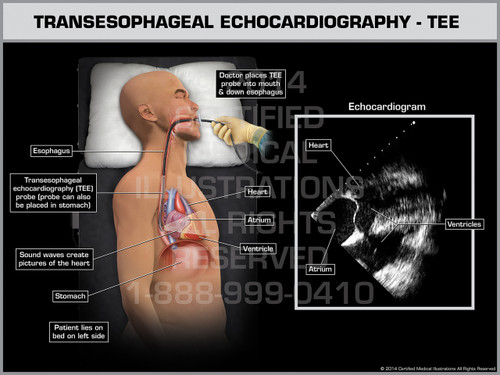 Exhibit of Transesophageal Echocardiography - TEE Male.