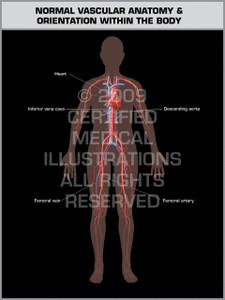 Exhibit of Normal Vascular Anatomy & Orientation (Female).