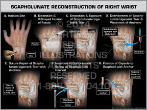 Exhibit of Scapholunate Reconstruction of Right Wrist.