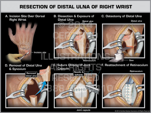 Exhibit of Resection of Distal Ulna of Right Wrist.