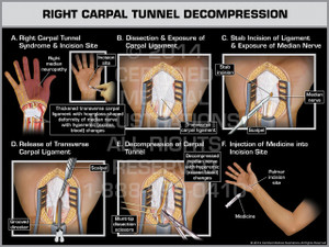 Exhibit of Right Carpal Tunnel Decompression.