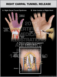 Exhibit of Right Carpal Tunnel Release.