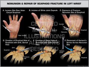 Exhibit of Nonunion & Repair of Scaphoid Fracture in Left Wrist 1.