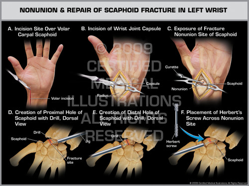 Exhibit of Nonunion & Repair of Scaphoid Fracture in Left Wrist 1.