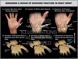 Exhibit of Nonunion & Repair of Scaphoid Fracture in Right Wrist.