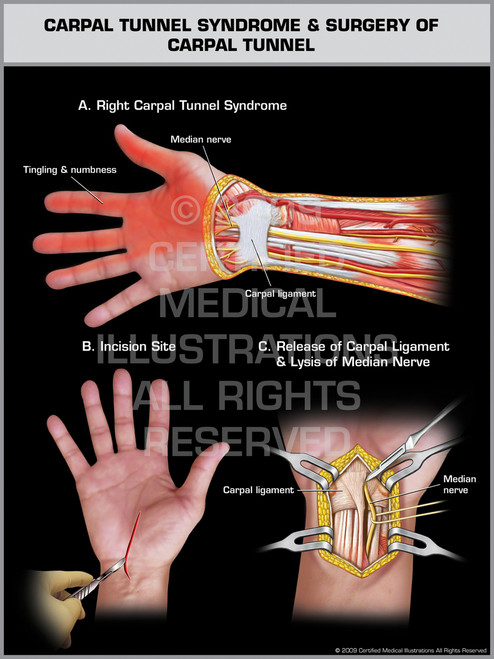 Exhibit of Carpal Tunnel Syndrome & Surgery of Carpal Tunnel - Right Hand.
