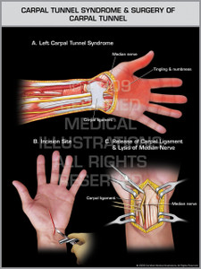Exhibit of Carpal Tunnel Syndrome & Surgery of Carpal Tunnel - Left Hand.
