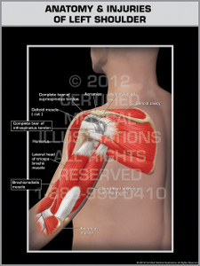 Exhibit of Anatomy & Injuries of Left Shoulder.