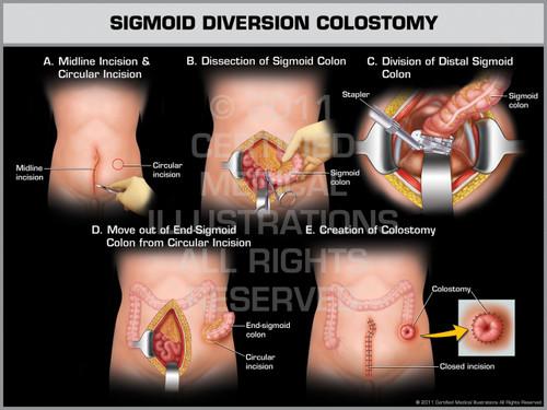 Exhibit of Sigmoid Diversion Colostomy (Male).