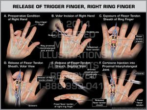 Exhibit of Release of Trigger Finger, Right Ring Finger.