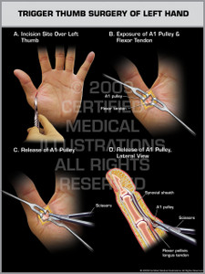 Trigger Thumb Surgery of Left Hand