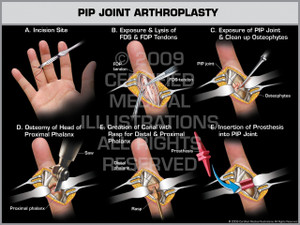 PIP Joint Arthroplasty