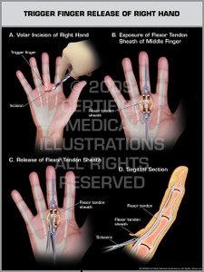 Trigger Finger Release of Right Hand