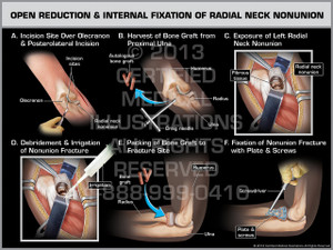 Open Reduction & Internal Fixation of Radial Neck Nonunion