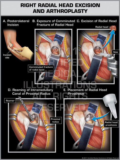 Right Radial Head Excision and Athroplasty
